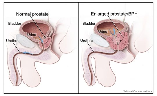 signs of prostate cancer