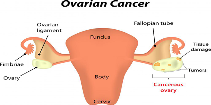 What are the early indications of ovarian cancer