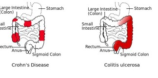 Symptoms of Crohn's Disease