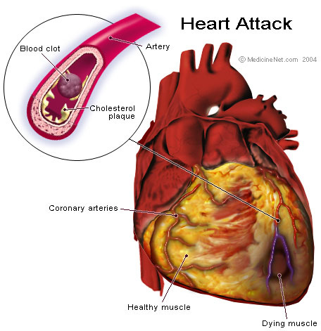 Signs of a Heart Attack Women