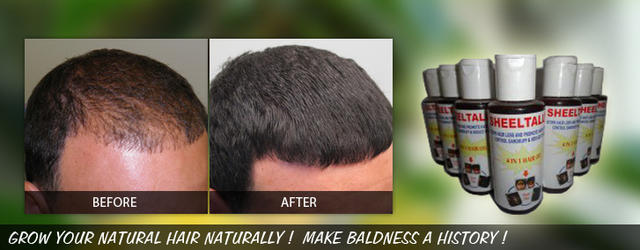 Ayurveda for baldness