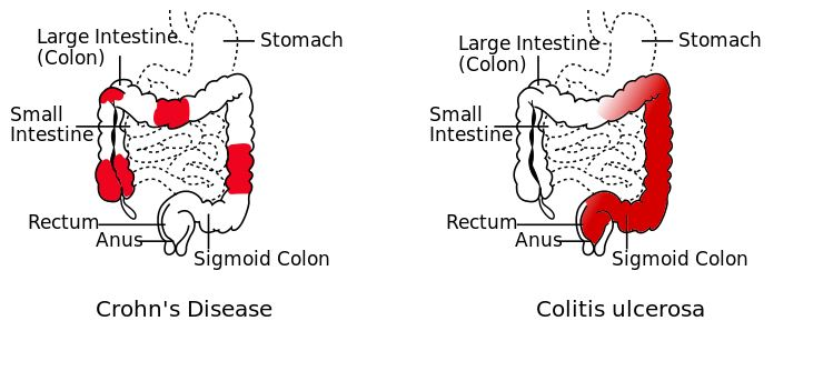 causes and effects of crohn s disease Crohn ' s disease (cd) is a chronic, recurrent inflammatory bowel disease (ibd)   symptoms of depression was 87 %  lifetime diagnoses of depres- sion, 157   currently, cause and effect between gastrointestinal and psy.
