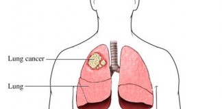 what is lung cancer- signs and symptoms