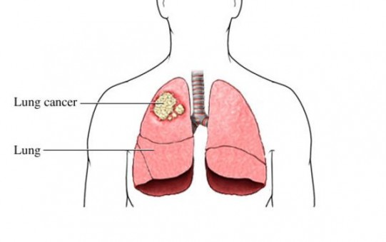 what is lung cancer- signs and symptoms - diagram