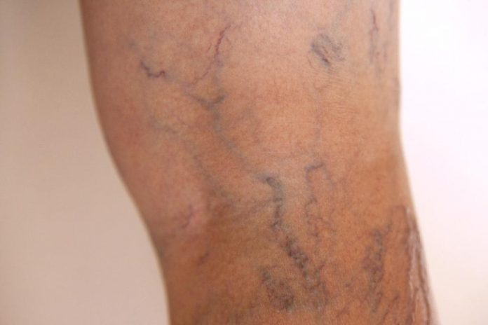 how to get rid of varicose veins