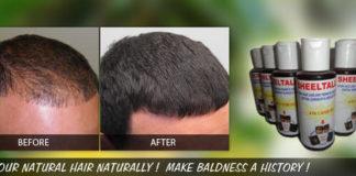 Ayurveda for baldness